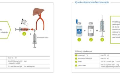 EmboCept® S – univerzální krátkodobá embolizace