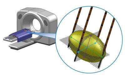 Předoperační CT – určení tvaru a velikosti léze
