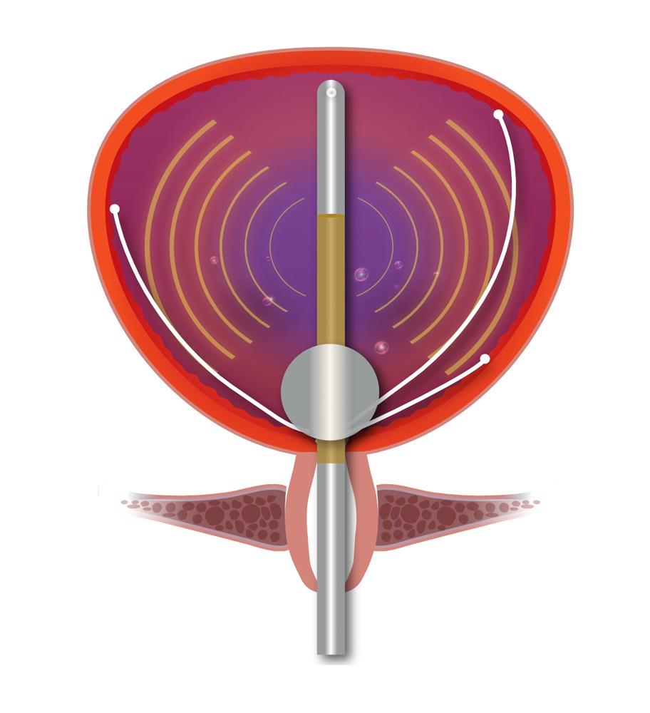 NanoKnife